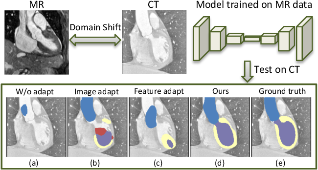Figure 1 for Synergistic Image and Feature Adaptation: Towards Cross-Modality Domain Adaptation for Medical Image Segmentation