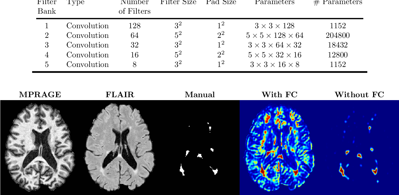 Figure 4 for Multiple Sclerosis Lesion Segmentation from Brain MRI via Fully Convolutional Neural Networks