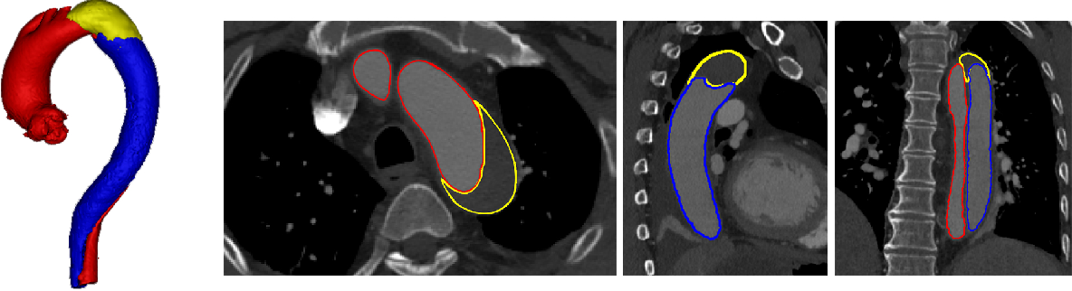 Figure 1 for ImageTBAD: A 3D Computed Tomography Angiography Image Dataset for Automatic Segmentation of Type-B Aortic Dissection
