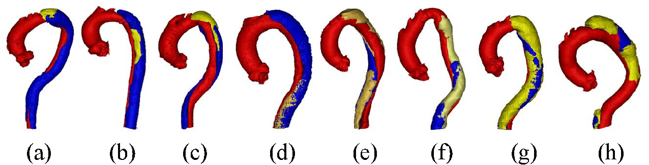 Figure 3 for ImageTBAD: A 3D Computed Tomography Angiography Image Dataset for Automatic Segmentation of Type-B Aortic Dissection