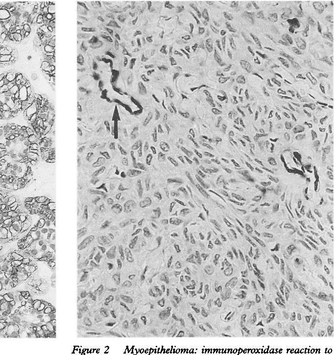 Figure 2 Myoepithelioma: immunoperoxidase reaction to ASMA clearly showing vascular reactivity (arrowed) but tumour negativity.