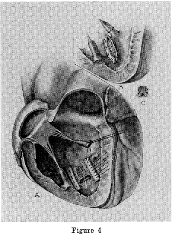 Figure 4 From Rupture Of The Infarcted Interventricular Septum
