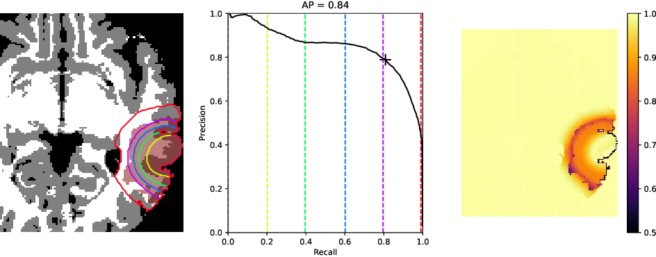 Figure 1 for Evaluating glioma growth predictions as a forward ranking problem