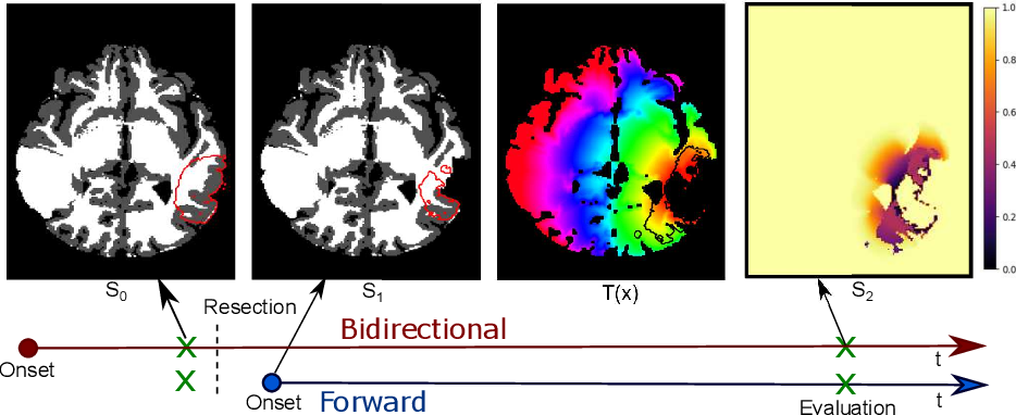 Figure 2 for Evaluating glioma growth predictions as a forward ranking problem