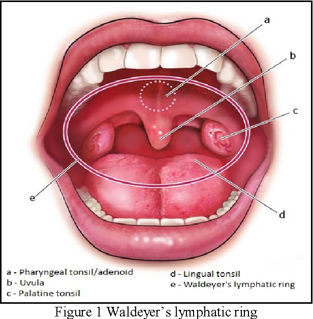 An Insight Into Relationship Of Hypertrophied Adenoids Tonsils And