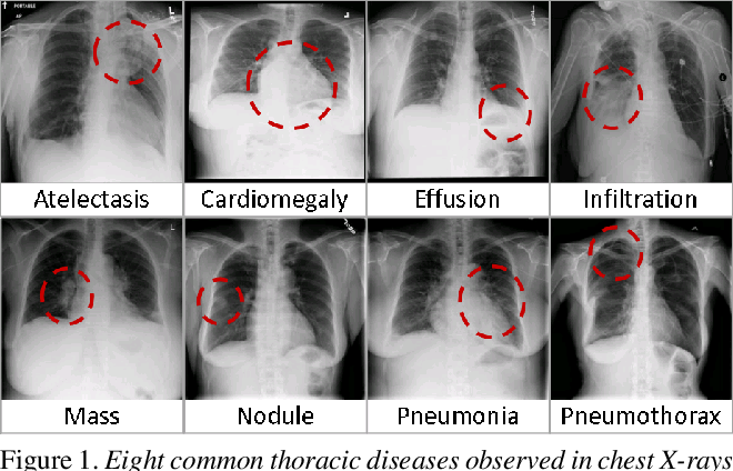 Figure 1 for ChestX-ray8: Hospital-scale Chest X-ray Database and Benchmarks on Weakly-Supervised Classification and Localization of Common Thorax Diseases