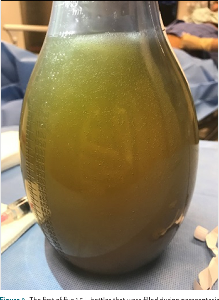 Figure 2. The first of five 1.5-L bottles that were filled during paracentesis containing thick, jelly-like ascites.