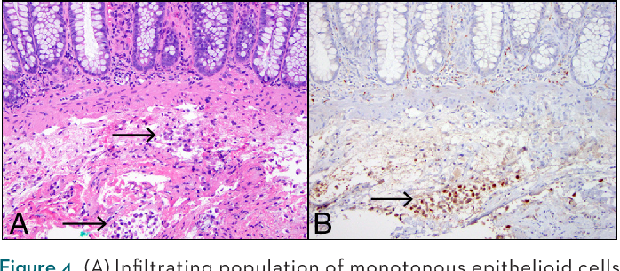 Figure 4. (A) Infiltrating population of monotonous epithelioid cells within the muscularis mucosa and submucosa (arrows). (B) Immunohistochemical study for calretinin highlights the tumor cells (arrow).