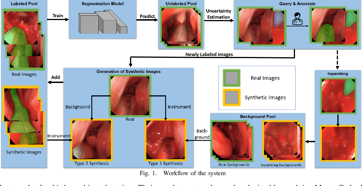 Figure 1 for Reducing Annotating Load: Active Learning with Synthetic Images in Surgical Instrument Segmentation