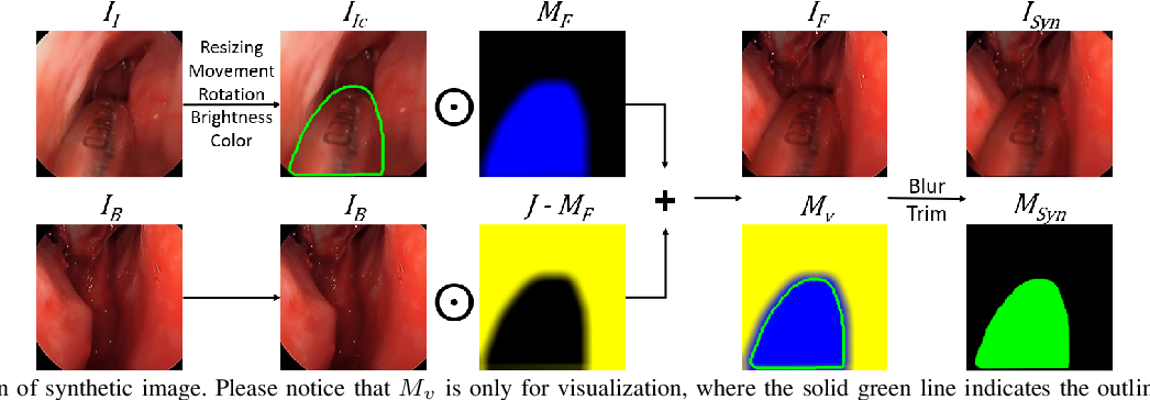 Figure 3 for Reducing Annotating Load: Active Learning with Synthetic Images in Surgical Instrument Segmentation