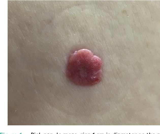 Figure 1 Pink papule measuring 1 cm in diameter on the posterior surface of the right lower limb.