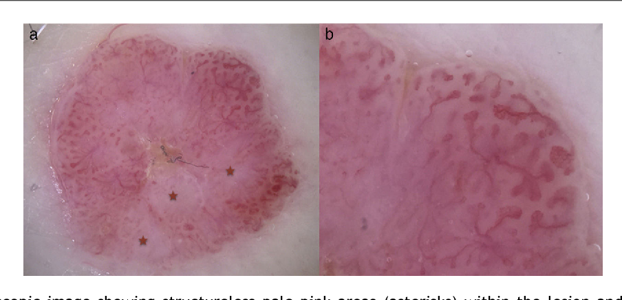 Figure 2 A, Dermoscopic image showing structureless pale pink areas (asterisks) within the lesion and prominent peripheral vascularity. B, Detail of the blood vessels with the characteristic cherry blossom images.