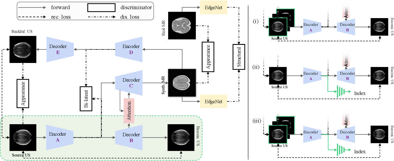Figure 2 for Self-Supervised Ultrasound to MRI Fetal Brain Image Synthesis