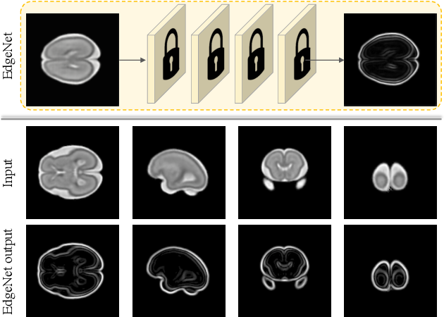 Figure 4 for Self-Supervised Ultrasound to MRI Fetal Brain Image Synthesis