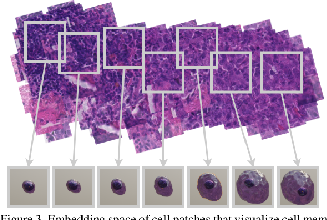 Figure 4 for Synthetic Generation of Three-Dimensional Cancer Cell Models from Histopathological Images