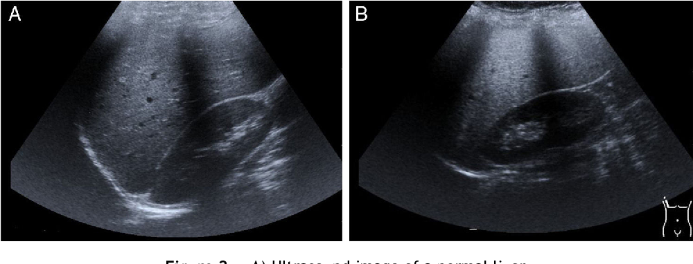 Figure 2 A) Ultrasound image of a normal liver.