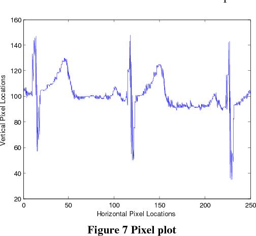 Figure 7 from Uniform Sampling of ECG Waveform of MIT-BIH