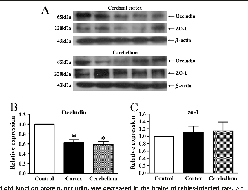 Sufficient Virus Neutralizing Antibody In The Central Nerve System