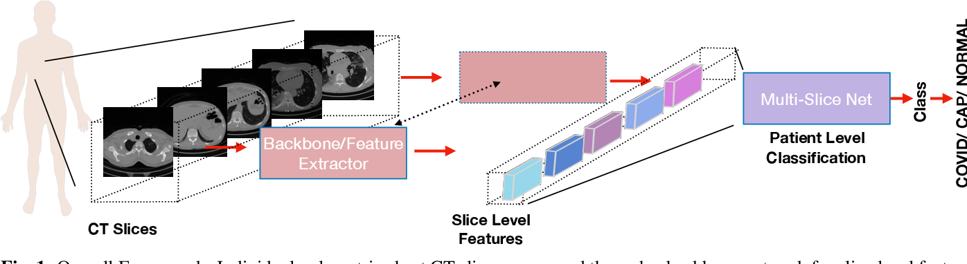 Figure 1 for Multi-Slice Net: A novel light weight framework for COVID-19 Diagnosis