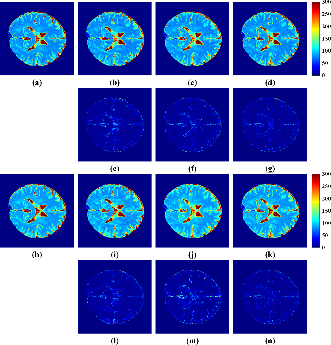 Figure 2 for Accelerated MRI Reconstruction with Separable and Enhanced Low-Rank Hankel Regularization