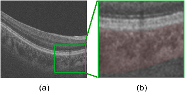 Figure 1 for BioNet: Infusing Biomarker Prior into Global-to-Local Network for Choroid Segmentation in Optical Coherence Tomography Images