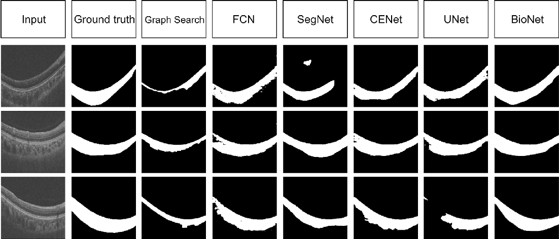Figure 4 for BioNet: Infusing Biomarker Prior into Global-to-Local Network for Choroid Segmentation in Optical Coherence Tomography Images
