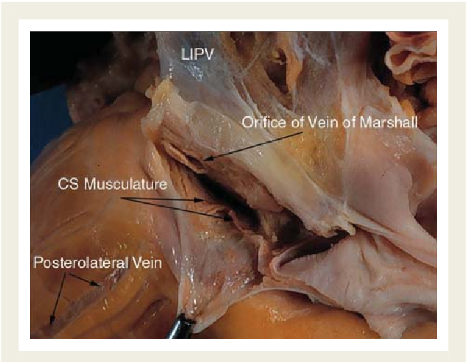 The anatomy of the coronary sinus venous system for the cardiac ...