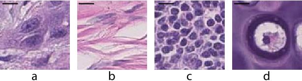 Figure 1 for Deconvolving convolution neural network for cell detection