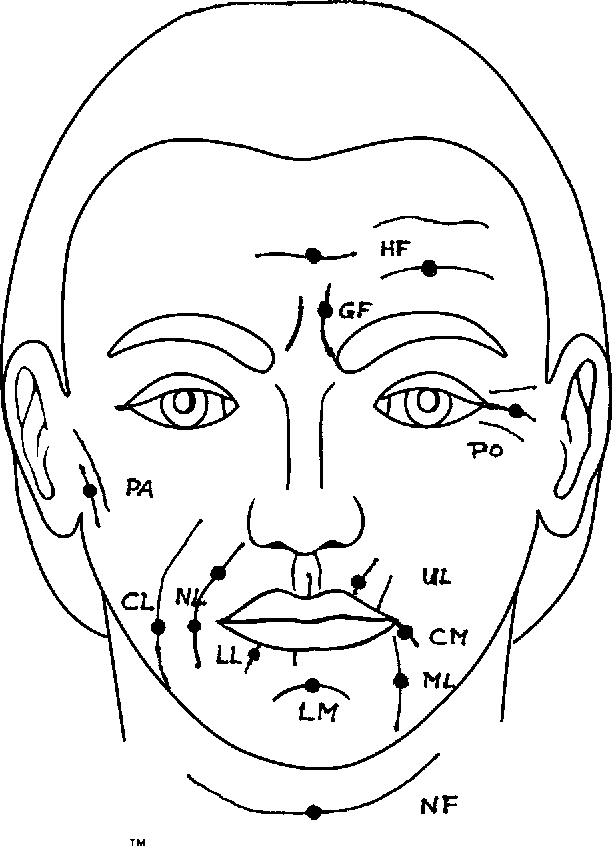 Figure 2 From A Classification Of Facial Wrinkles