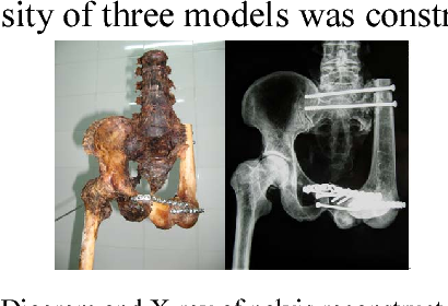 1 diagram and x-ray of pelvis reconstructed by distal femur and proximal