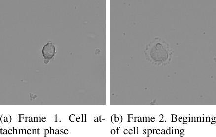 Figure 3 for Automated image segmentation for detecting cell spreading for metastasizing assessments of cancer development