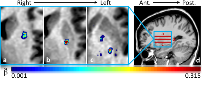 Figure 3 for Tensor-Based Grading: A Novel Patch-Based Grading Approach for the Analysis of Deformation Fields in Huntington's Disease