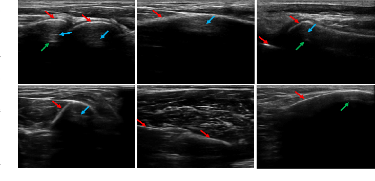 Figure 2 for Delineating Bone Surfaces in B-Mode Images Constrained by Physics of Ultrasound Propagation
