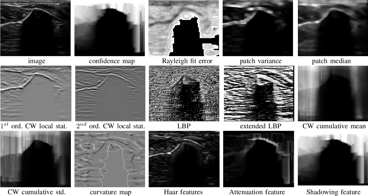 Figure 3 for Delineating Bone Surfaces in B-Mode Images Constrained by Physics of Ultrasound Propagation