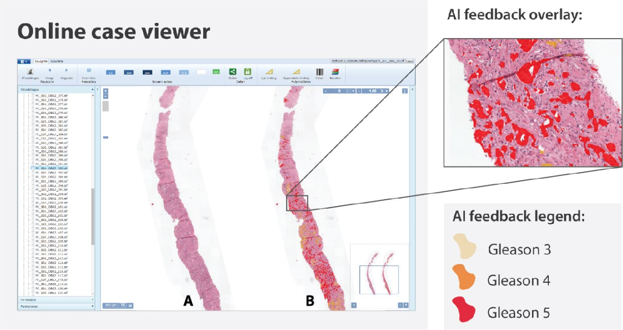 Figure 1 for Artificial Intelligence Assistance Significantly Improves Gleason Grading of Prostate Biopsies by Pathologists