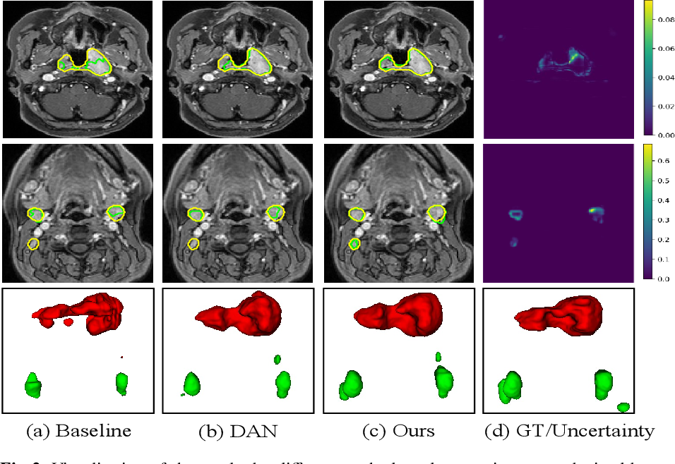 Figure 3 for Semi-supervised Segmentation via Uncertainty Rectified Pyramid Consistency and Its Application to Gross Target Volume of Nasopharyngeal Carcinoma