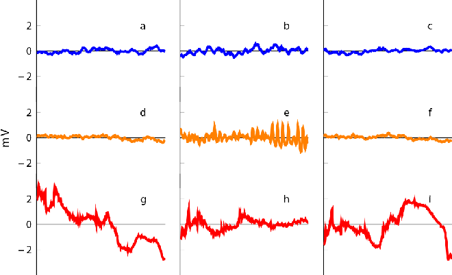 Figure 4 for Supervised Learning in Automatic Channel Selection for Epileptic Seizure Detection