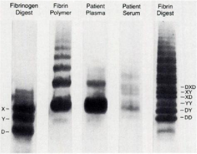Fig 6. Electrophoresis of plasma and serum from a patient
