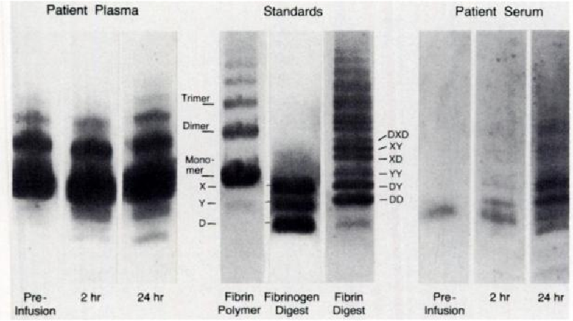 Fig 7. Electrophoresis of plasma and serum from a patient treated with urokinase for pulmonary embolism. Samples of standard preparations (10 pg each) and of patient plasma and serum (1:20