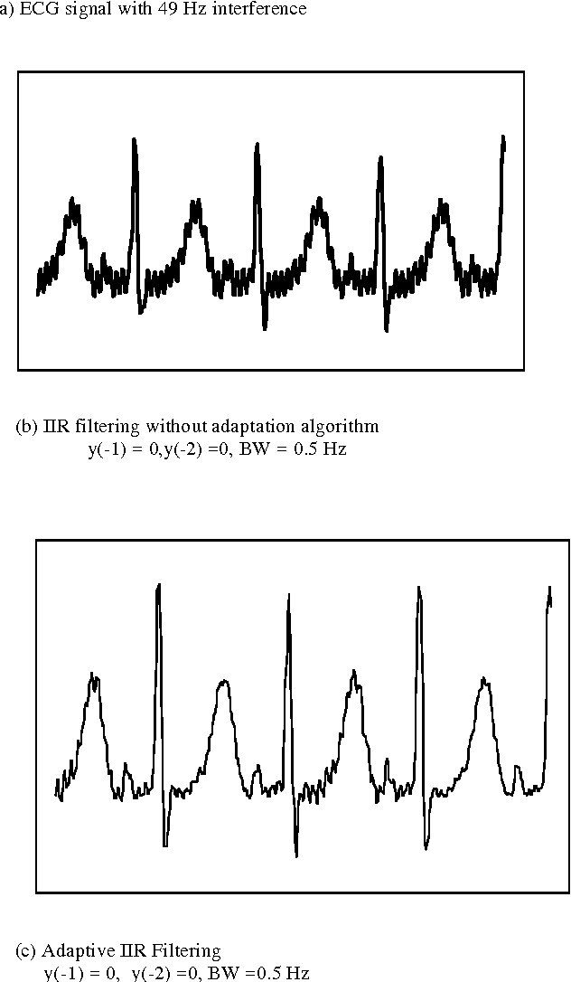 Figure 3 from Power line interference removal from