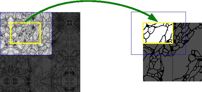 Figure 3 for U-Net: Convolutional Networks for Biomedical Image Segmentation