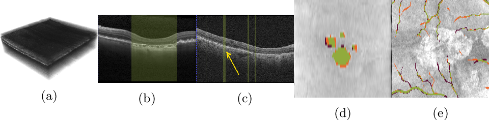 Figure 1 for Projective Skip-Connections for Segmentation Along a Subset of Dimensions in Retinal OCT