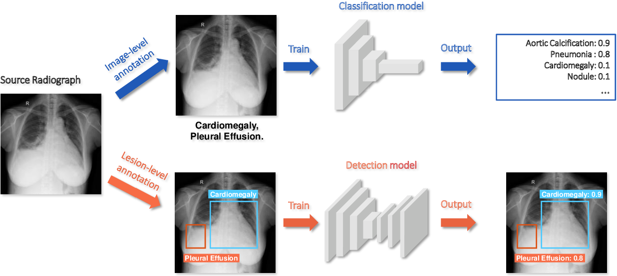 Figure 1 for Rethinking annotation granularity for overcoming deep shortcut learning: A retrospective study on chest radiographs