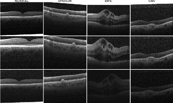 Figure 2 for SISE-PC: Semi-supervised Image Subsampling for Explainable Pathology