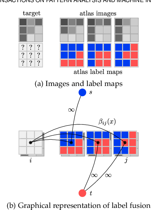 Figure 1 for Multi-Atlas Segmentation using Partially Annotated Data: Methods and Annotation Strategies