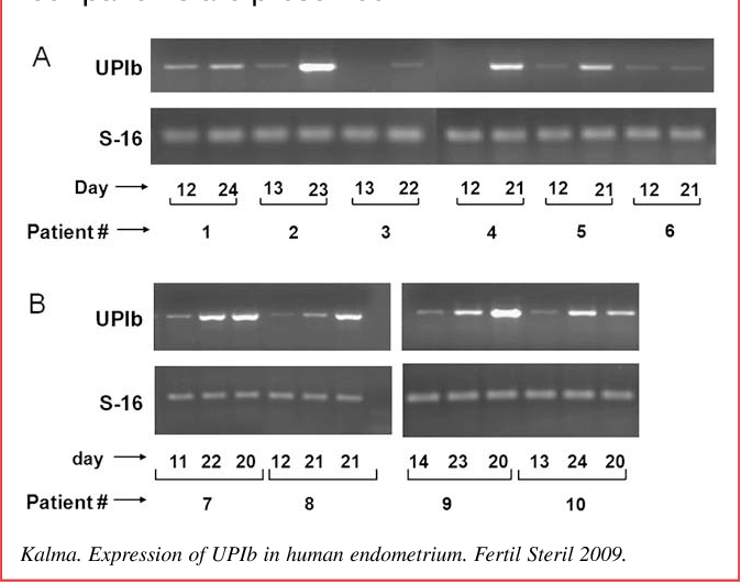 Endometrial Biopsy Induced Gene Modulation First Evidence For The