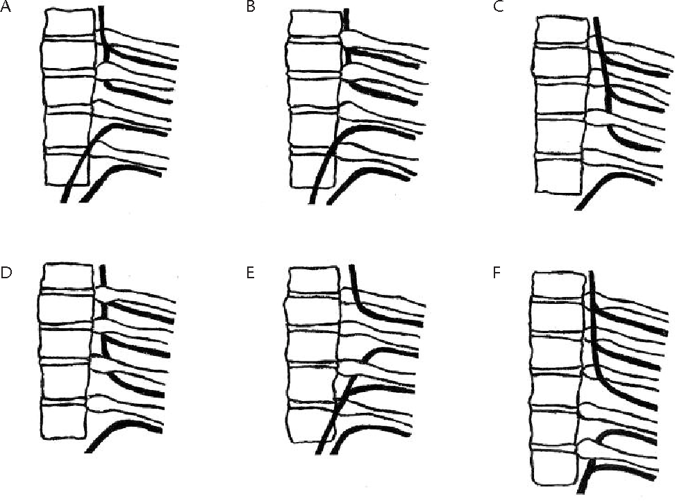 Anatomical variations of the posterior intercostal arteries and the ...