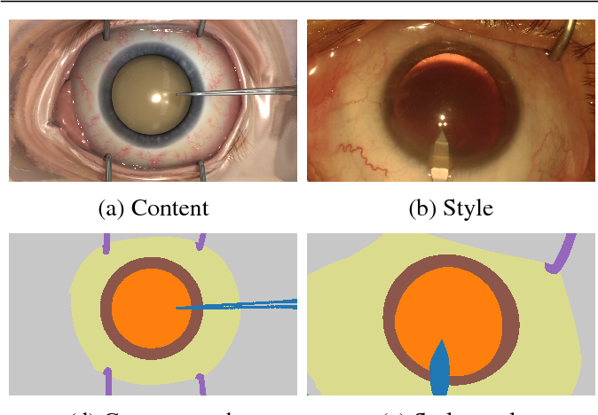 Figure 3 for SurReal: enhancing Surgical simulation Realism using style transfer