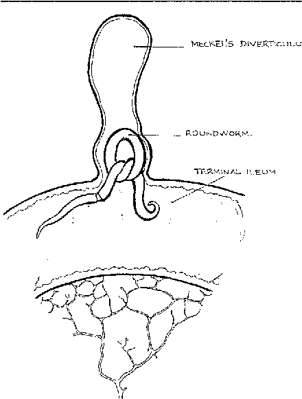Figure 1 From Meckels Diverticulitis Caused By Roundworm