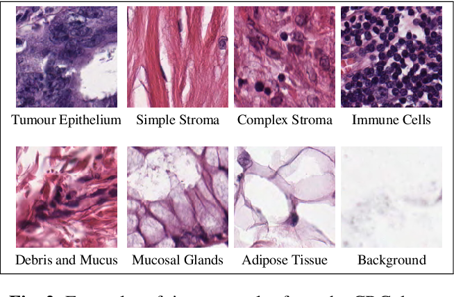 Figure 3 for Learning with less data via Weakly Labeled Patch Classification in Digital Pathology
